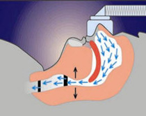 Diagram of air fow using CPAP